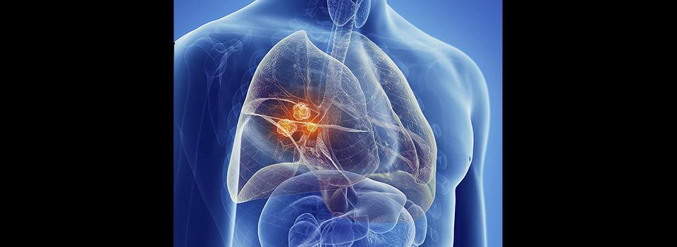 Un nuovo Biomarcatore per la diagnosi precoce del Cancro del Polmone
