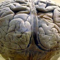 Feeding and dementia