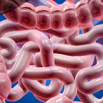 SIBO (Small Intestinal Bacterial Overgrowth).  Contaminación microbiana del intestino delgado